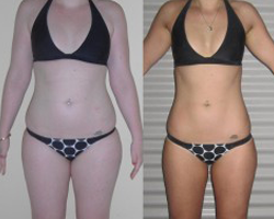 Before and after photo of challenge first runner up Ash