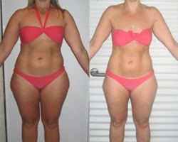 Before and after photo of overall challenge first runner up Kerri