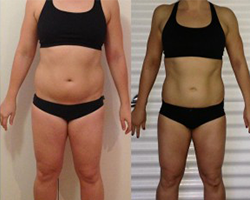 Before and after photo of challenge winner Emma